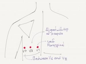 Placering av V7-V9 för att upptäcka bakväggsinfarkt.