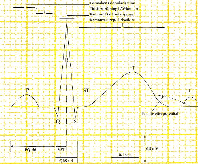 EKG-definitioner