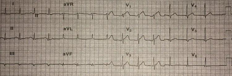 rightsided infarkt
